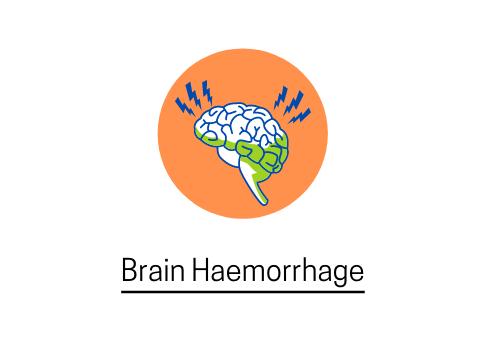 brain haemorrage