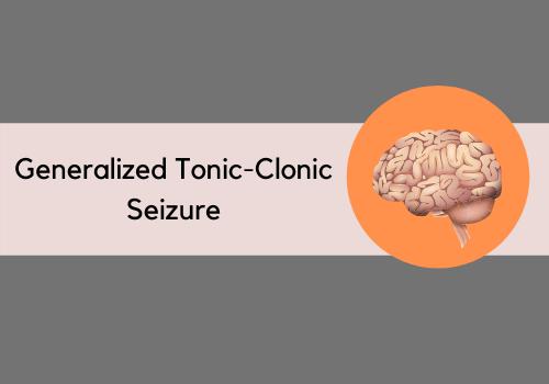 Generalized Tonic-Clonic Seizure