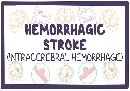 Intracerebral Hemorrhage - A Life Threatening Disease