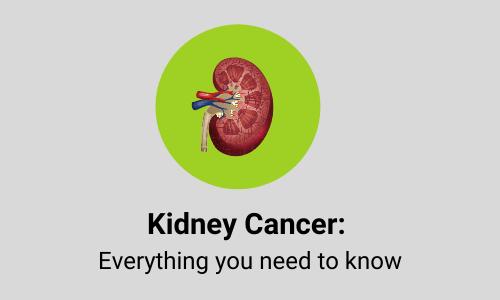 kidney cancer guide