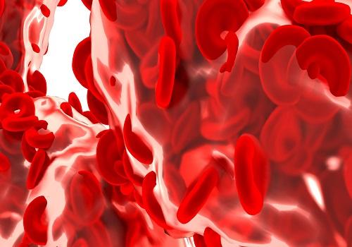 Peripheral Artery Disease (PAD) - Symptoms, Diagnosis, And Treatment