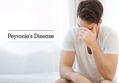 Peyronie's Disease - Causes, Symptoms, Diagnosis, And Treatment
