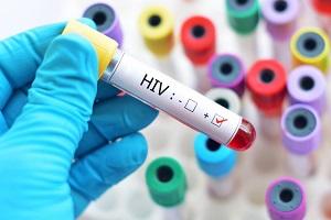 HIV & Herpes